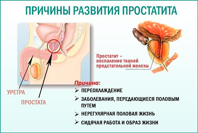 Функции предстательной железы у мужчин, анатомия и строение