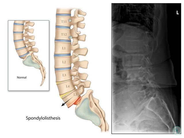 Спондилоартроз грудного отдела: причины, симптомы, диагностика и лечение