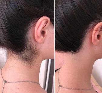 Чем характерна элос-эпиляция, что это такое и как этот способ объединяет в себе преимущества других видов удаления волос
