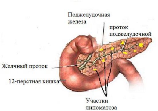 Липоматоз поджелудочной железы что это такое симптомы
