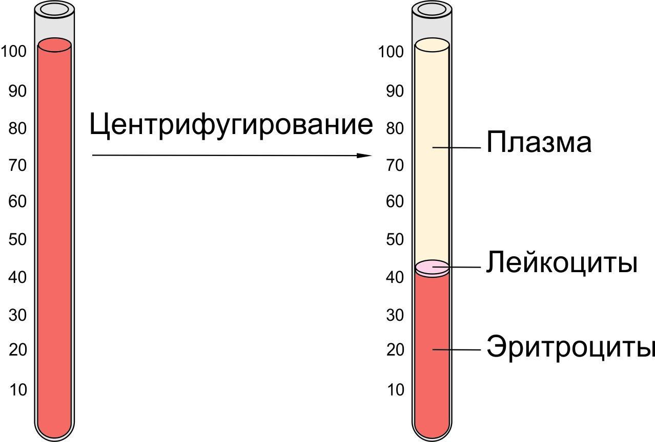Что такое гематокрит в анализе крови,его норма у женщин по возрасту в таблице