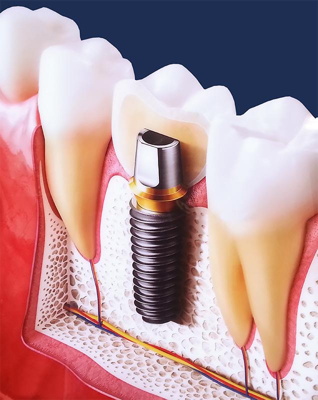 Базальная имплантация зубов: история развития, преимущества и недостатки