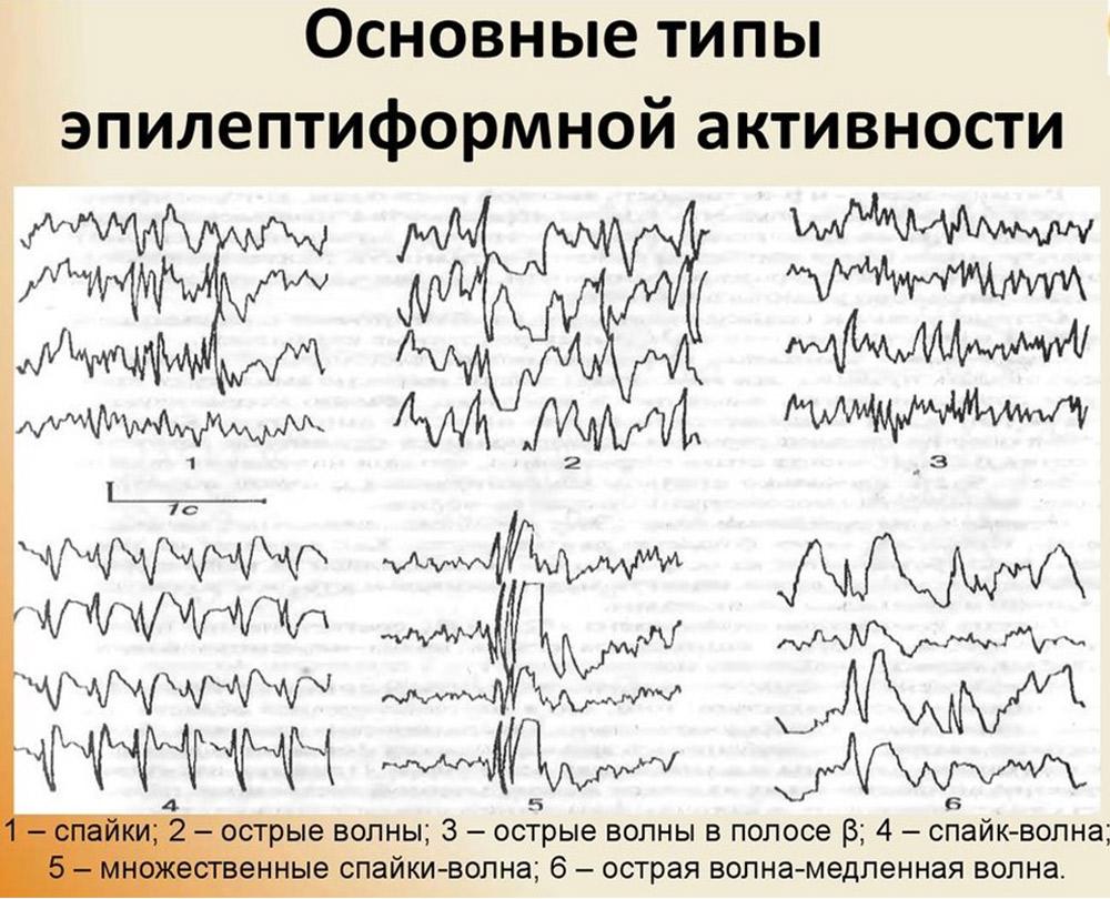 Расшифровка ээг головного мозга - что показывает ээг