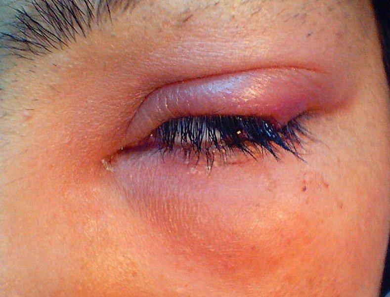 Как лечить ячмень на глазу - правильное лечение и народные методы