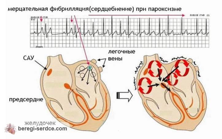 Что такое мерцательная аритмия сердца и как ее лечить