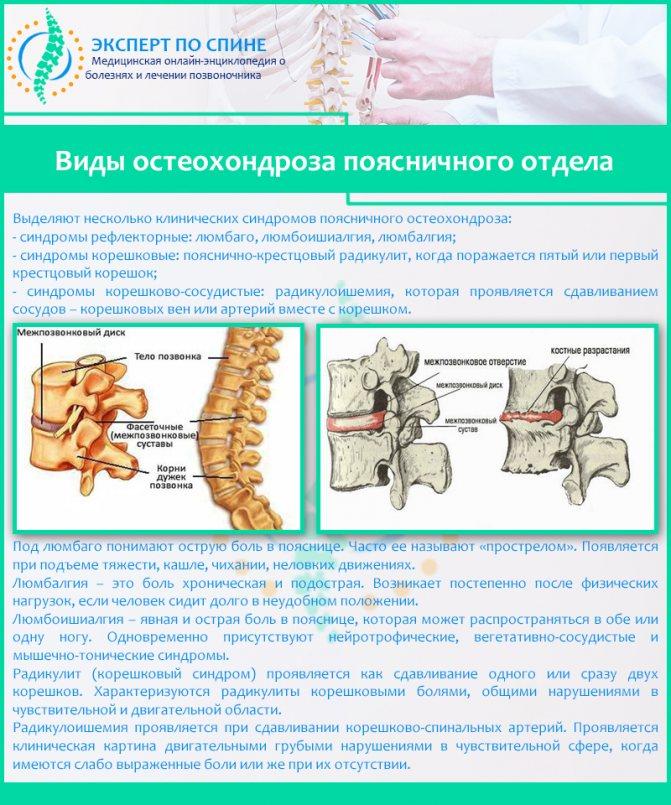 Вертеброгенная люмбоишиалгия — консервативное и хирургическое лечение
