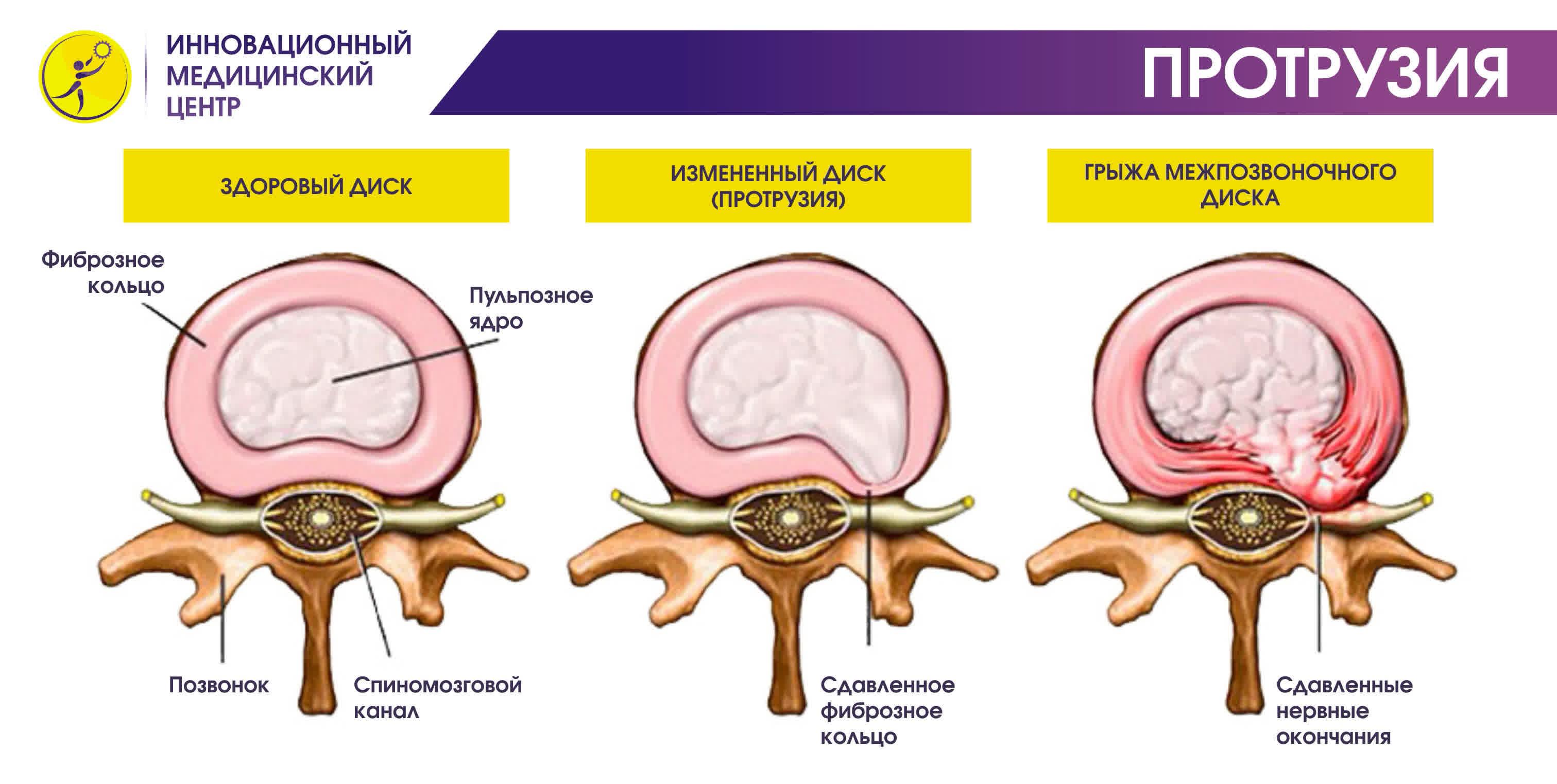 Протрузия шейного отдела - причины, симтомы, лечение, диагностика