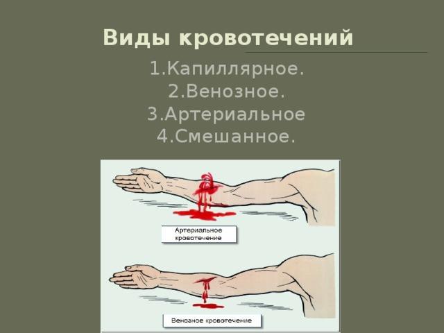Глава 5 кровотечение и методы его остановки