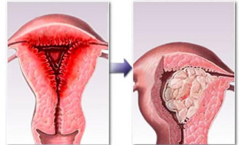 Лечение гиперплазии эндометрия методом фдт   гинеколог герасимова ольга