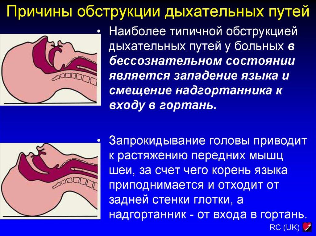 Обструкция легких: что это такое, симптомы, лечение pulmono.ru обструкция легких: что это такое, симптомы, лечение