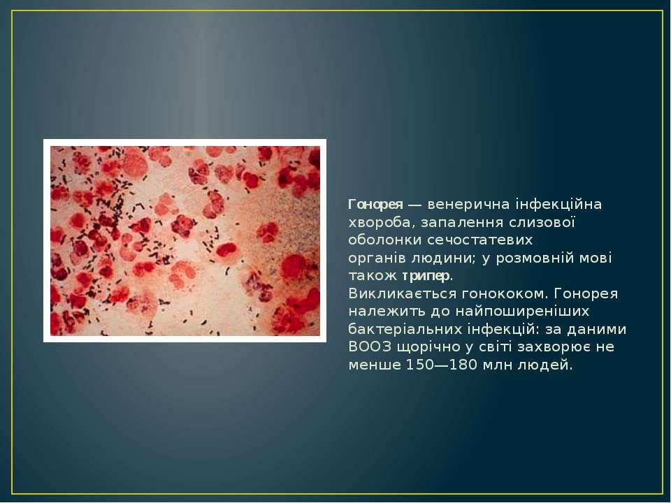 Гонорея у женщин: симптомы, диганостика, лечение и фото