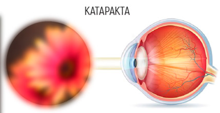 Какой хрусталик лучше ставить при катаракте, импортный, американский, индийский, отечественный, как выбрать вид иол при операции