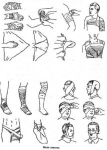 Виды повязок и правила их наложения
