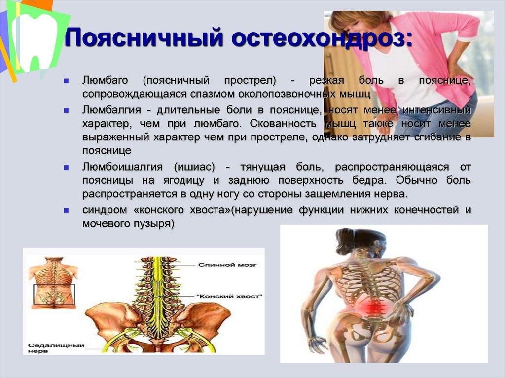 Люмбаго - причины, симптомы, лечение, виды и диагностика