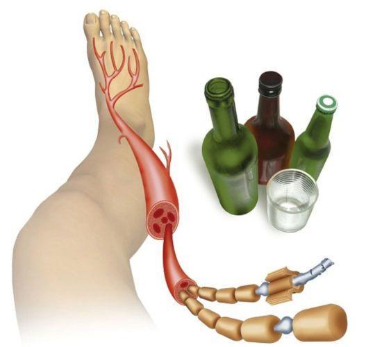 Что такое алкогольная полинейропатия