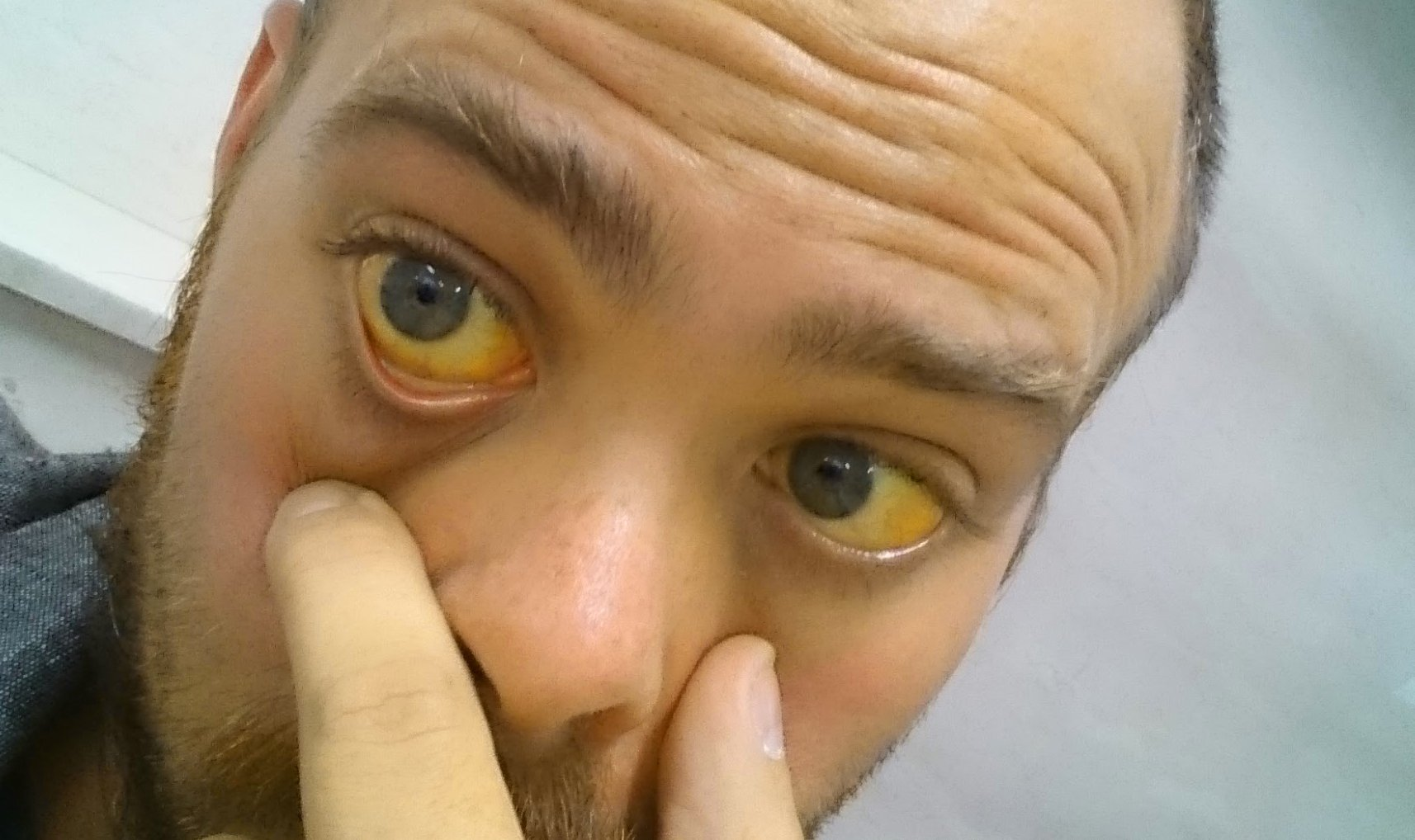 Желтуха — википедия. что такое желтуха