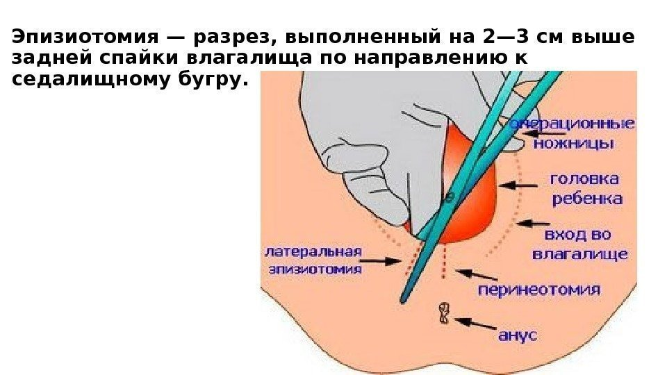 Эпизиотомия. можно ли без нее обойтись? перинеотомия и эпизиотомия при родах