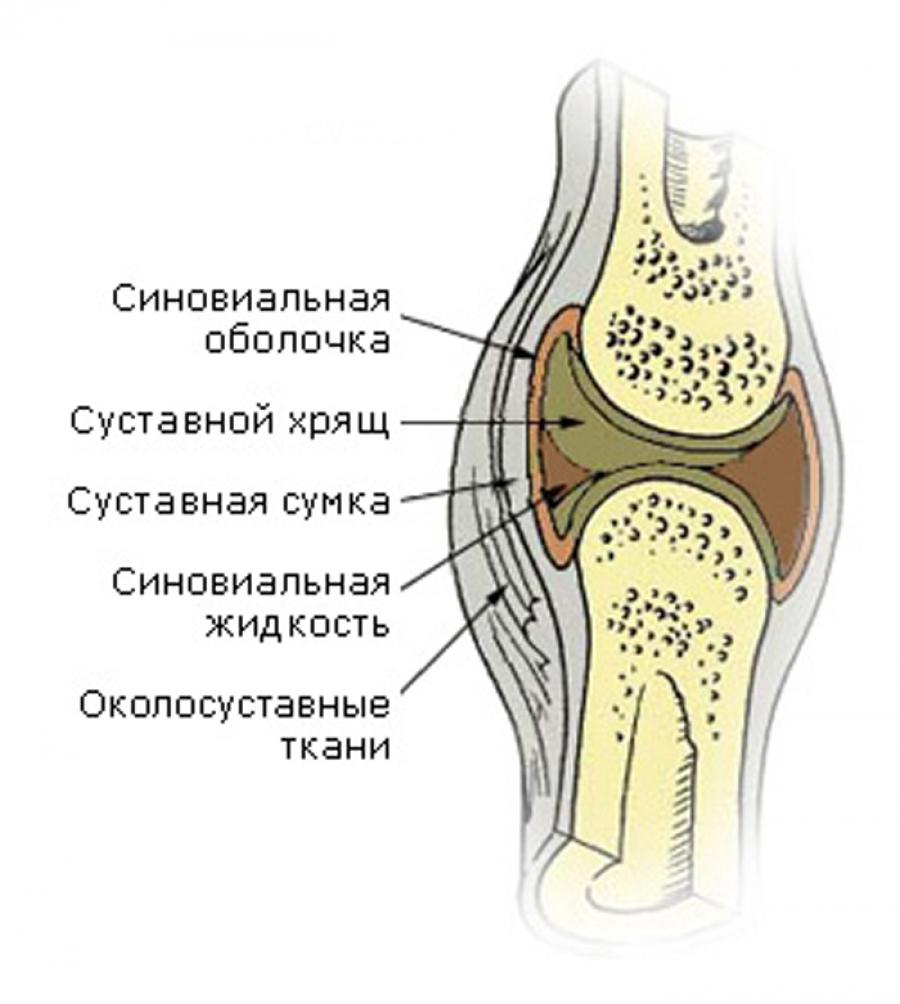 Синовиальная жидкость при ревматоидном артрите - sustavybol