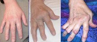 Ревматический артрит: что это такое, симптомы и лечение заболевания