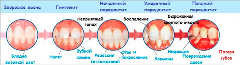 Пародонтоз десен и зубной у взрослых: симптомы и лечение в домашних условиях + 50 фото