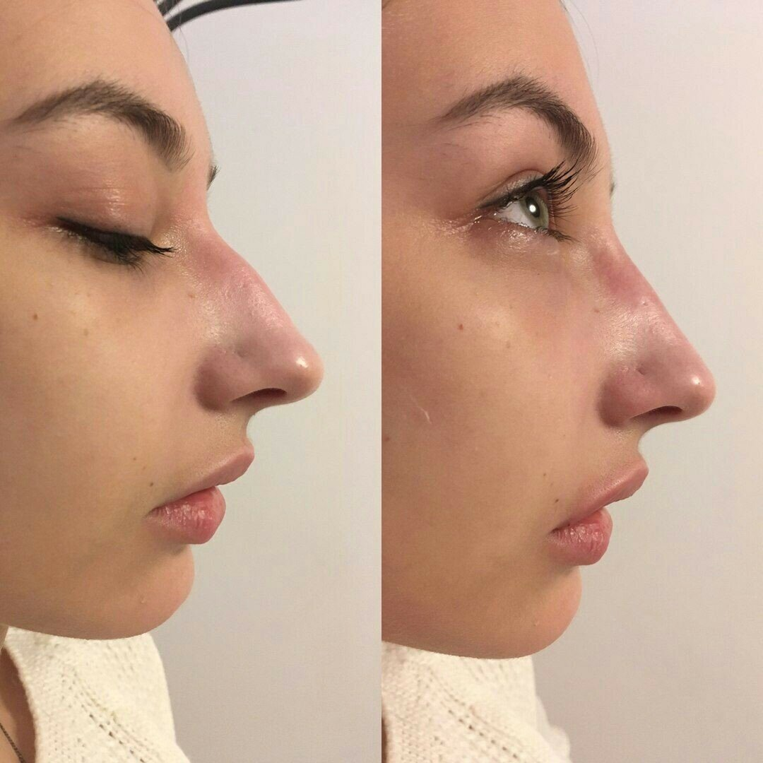 Ринопластика курносого носа - фото до и после, советы косметолога | ринопластика носа