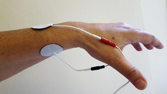 Мышечные контрактуры: как лечить ограничения мышечной активности