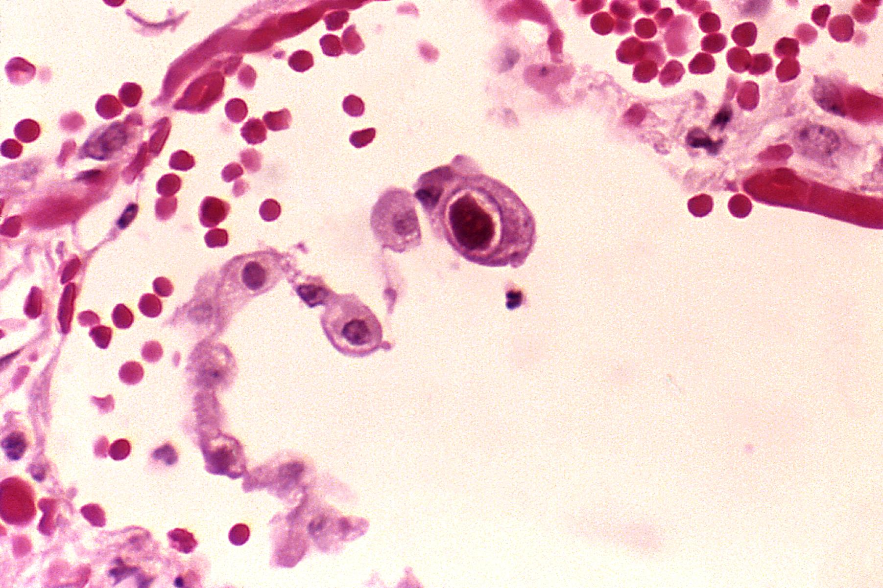 Цитомегаловирусная инфекция: симптомы, диагностика, лечение