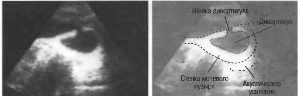 Дивертикул мочевого пузыря: диагностика и лечение