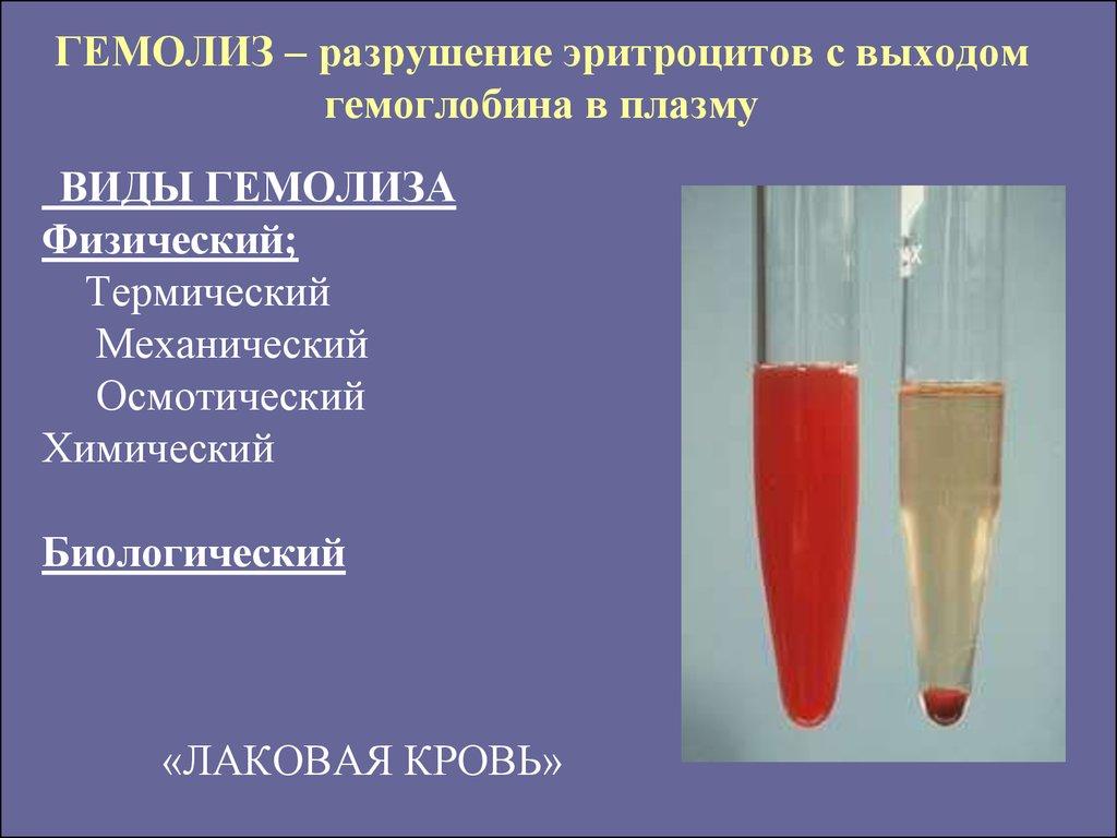 Гемолиз: что это такое? причины, диагностика и лечение