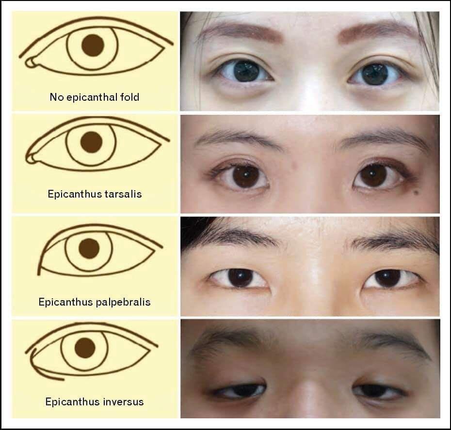 Эпикантус (монгольская складка) на лице