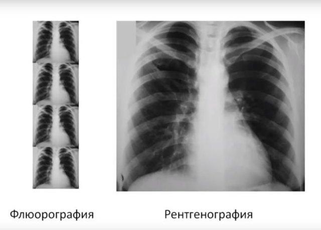Флюорография и рентген легких в медицине, в чем разница и отличие