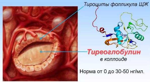 Антитела к тиреоглобулину повышены: что это значит, причины