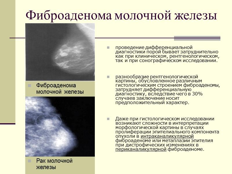 Диффузная мастопатия: причины, симптомы, лечение