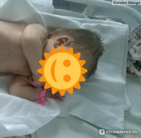 Кесарево сечение (54 фото): что это такое, плюсы и минусы, виды и ход экстренных родов, мифы, рекомендации и отзывы мамочек после операции