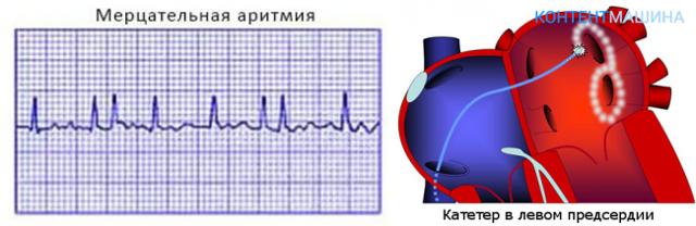 Радиочастотная абляция сердца (рча): техника, отзывы и стоимость