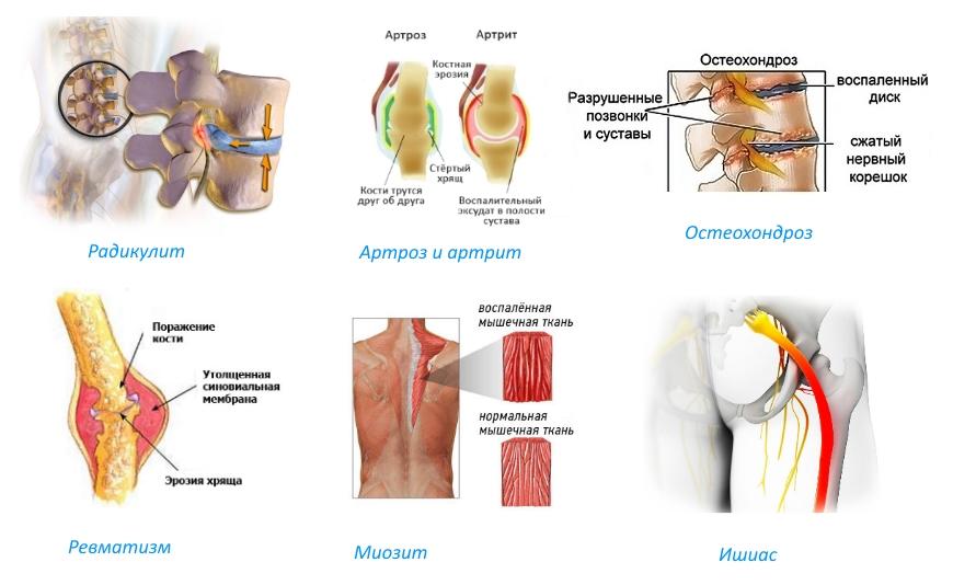 Симптомы и лечение радикулопатии