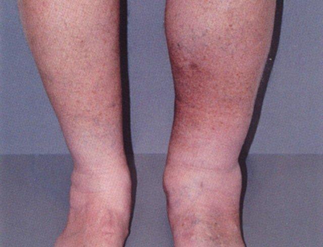 Лечение тромбофлебита: что такое тромбофлебит его признаки и симптомы и как его лечить