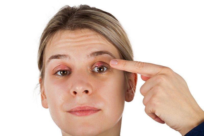 Выбираем эффективное средство от ячменя на глазу: лучшие медикаменты и народные средства