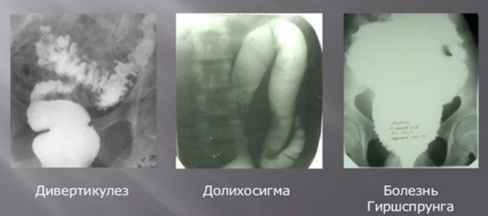 Долихосигма кишечника у взрослых симптомы и лечение - лечимпросто