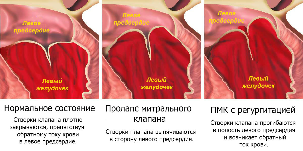 Пролапс митрального клапана 2 степени: лечение, симптомы и причины