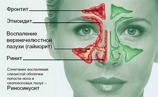 Правосторонний фронтит: симптомы, особенности лечения