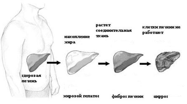 Жировой гепатоз 1, 2 и 3 степени: отличия, симптомы и лечение
