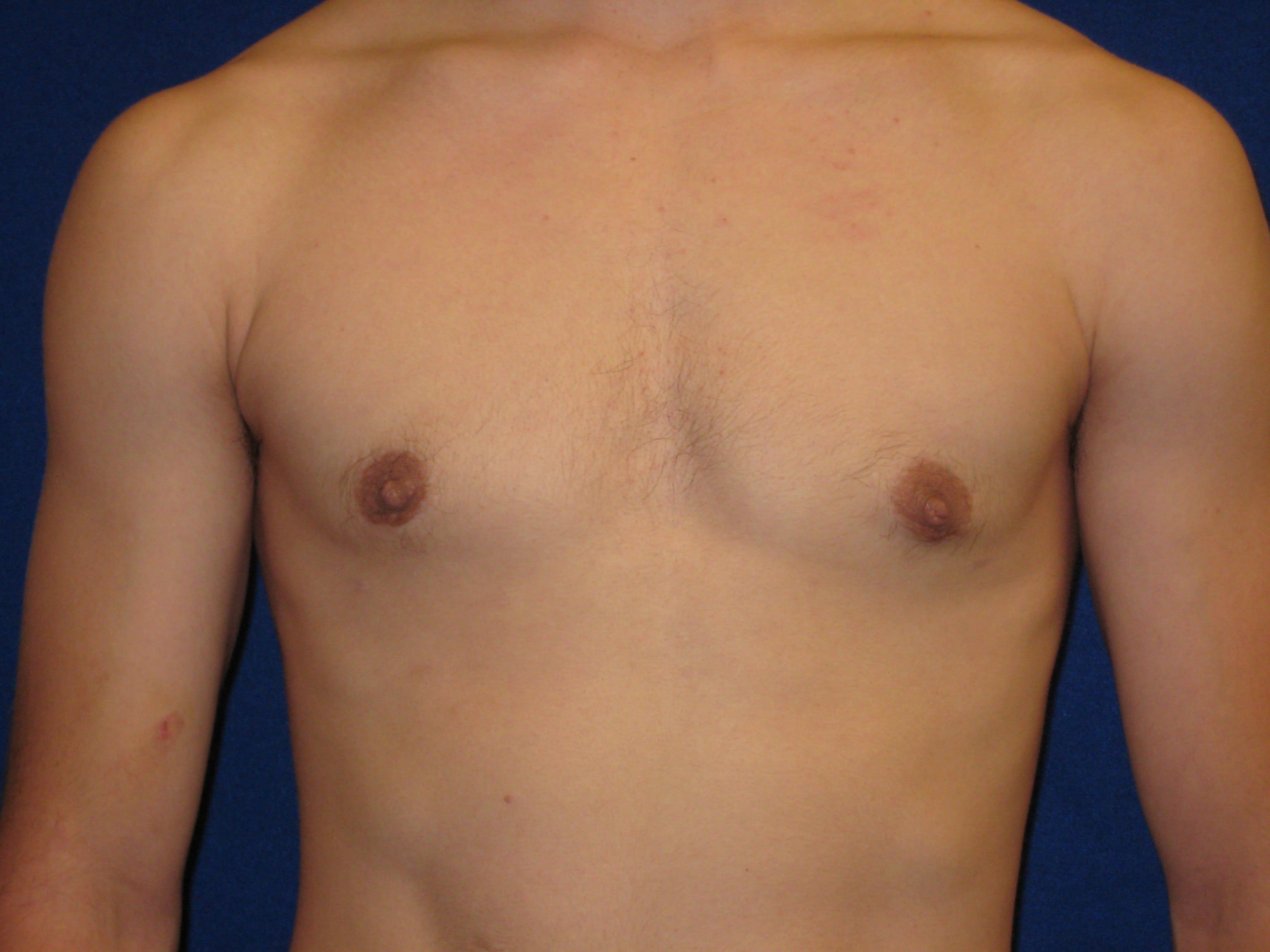 Гинекомастия у мужчин, у женщин: что это, симптомы, лечение