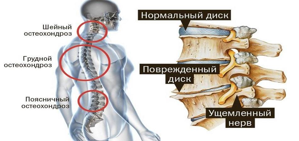 Дискогенная радикулопатия пояснично крестцового отдела позвоночника