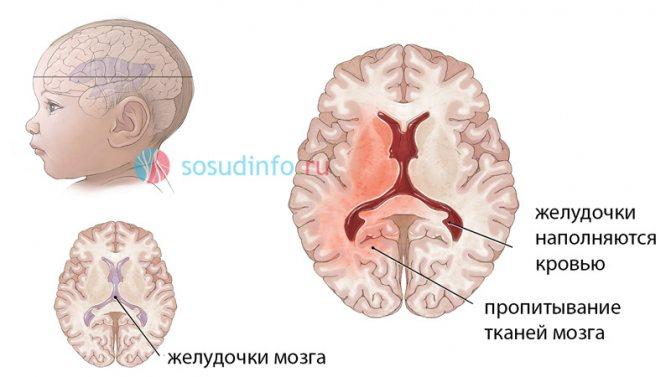 Признаки и последствия обширного кровоизлияния в мозг