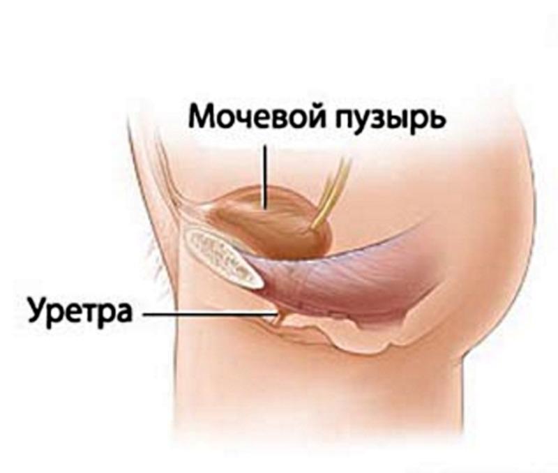 Уретрит у женщин: симптомы и лечение, препараты, народные средства