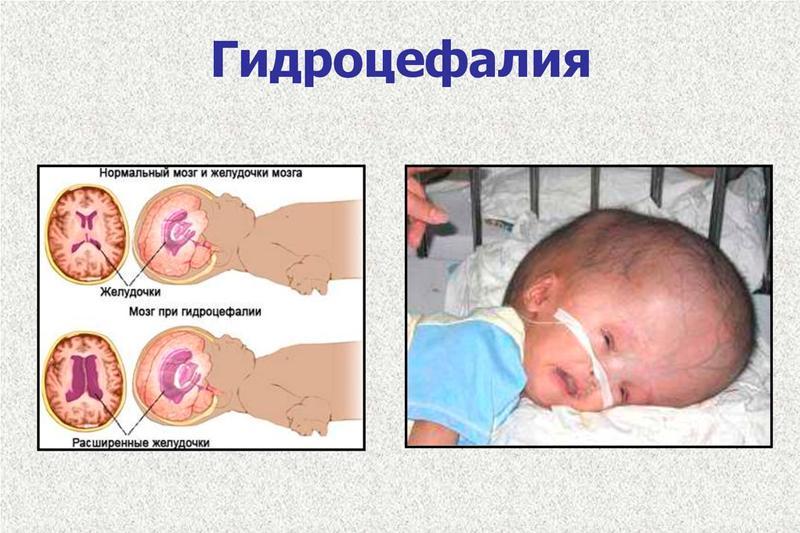 Гидроцефалия - лечение, симптомы, классификация, причины, диагностика