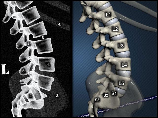 Ретролистез l5 позвонка — смещение как последствие заболеваний опорно-двигательного аппарата