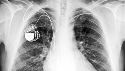 Отзывы, противопоказания и установка кардиостимулятора сердца