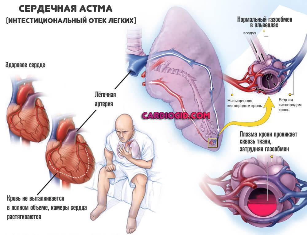 Сердечный кашель что это такое и как его лечить